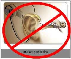 Stop gli impianti cocleari