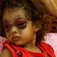 stop alla strage di Gaza