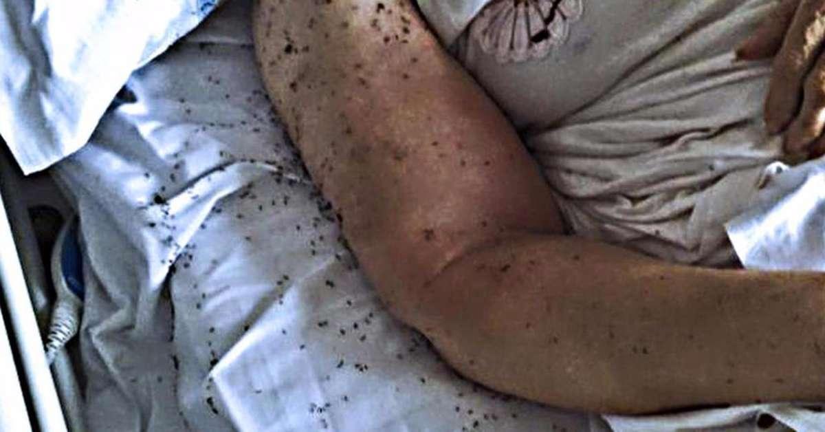 Formiche in un letto d'ospedale: ecco la sanità italiana!